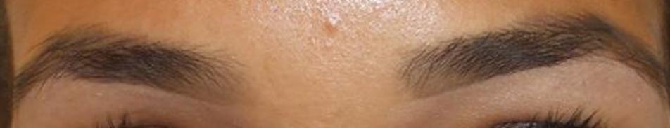 eClinic Haartransplantaties | Wenkbrauwtransplantatie