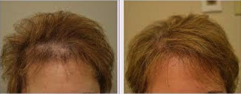 eClinic Haartransplantaties | Haartransplantatie vrouw