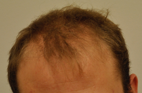 eClinic Haartransplantaties | Hair transplants for Men