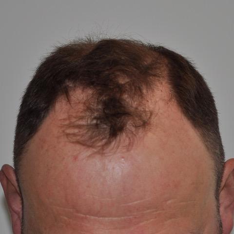 eClinic Haartransplantaties | Haartransplantatie Man
