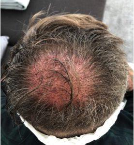 eClinic Haartransplantaties | Results
