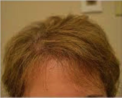 eClinic Haartransplantaties | Women