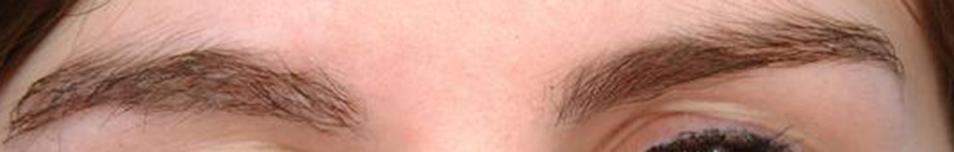 eClinic Haartransplantaties | Eyebrow transplant