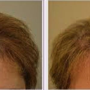 eClinic Haartransplantaties | Hair Transplants for Women