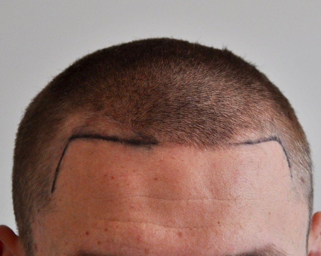 eClinic Haartransplantaties | Haartransplantatie