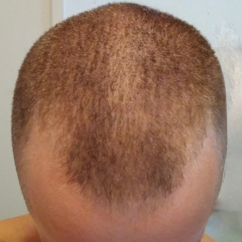 eClinic Haartransplantaties | Resultaten